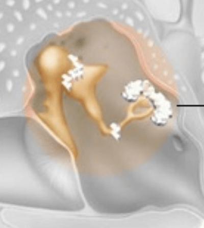 Close Up del Otosclerosis